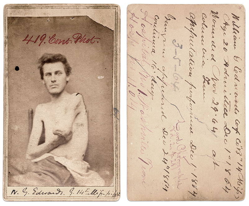 Carte de visite by an unidentified photographer connected to Hospital No. 1 in Nashville, Tenn. Matthew L. Oswalt M.D. Collection.