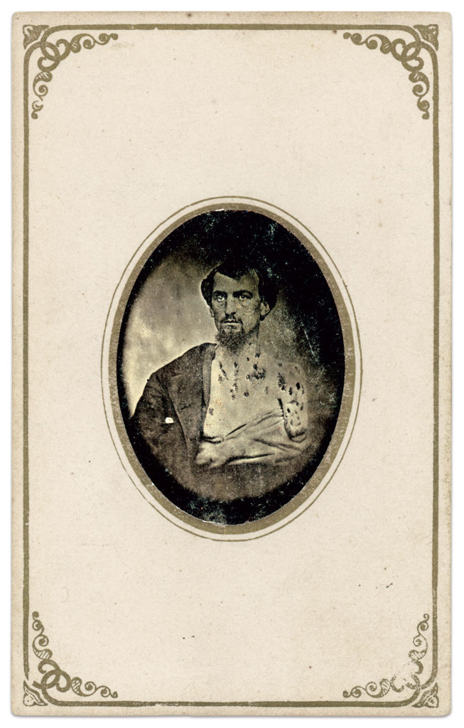 Tintype in carte de visite envelope by an unidentified photographer. Author's collection.